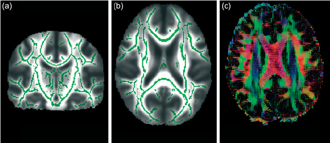 From-diffusion-tensor-imaging-measures-of-fractional-anisotropy-FA-can-be-derived